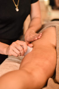 SHE'S IN-SHAPE Apeldoorn Cupping therapie
