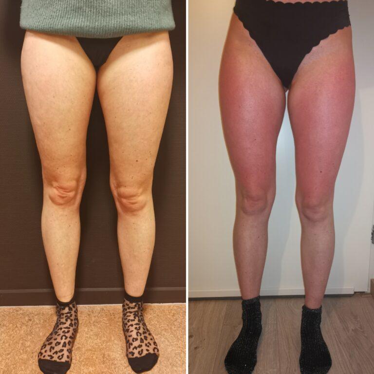 Before &after cuppig en binsweefsel massage